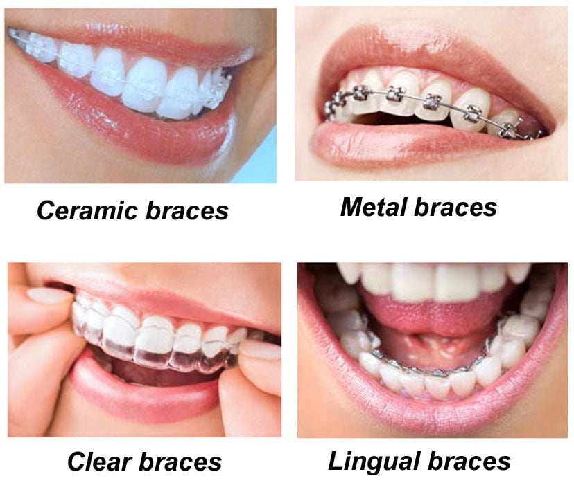 ITS DENTAL COLLEGE ORTHODONTICS