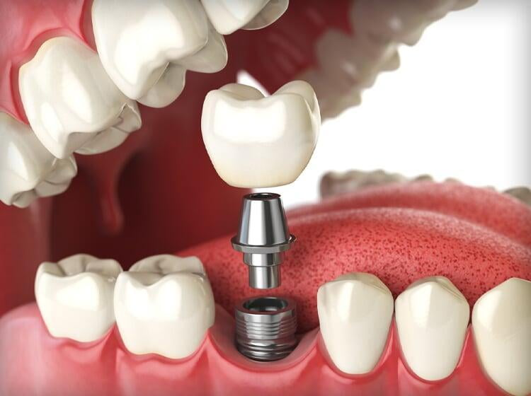 Dental Implants at ITS Dental College, Greater Noida